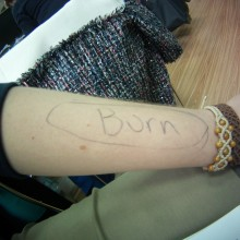 I wrote on my arm to help students with medical terms